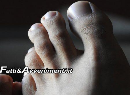 Salute&Benessere. Esiste una nuova medicazione per il piede diabetico