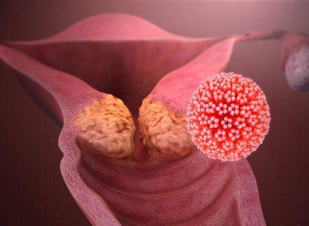 Salute & Benessere. Human papilloma virus: il cancro sconfitto da un vaccino