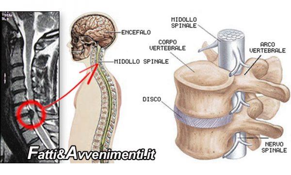 Salute & Beenessere. Lesione del midollo spinale: nuova tecnica terapeutica